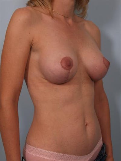 Complex Breast Revision Gallery - Patient 1310837 - Image 6