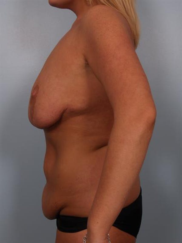 Mommy Makeover Gallery - Patient 1310839 - Image 5
