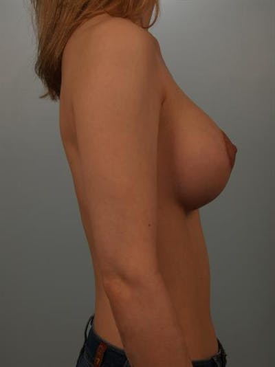 Breast Lift Gallery - Patient 1310838 - Image 6