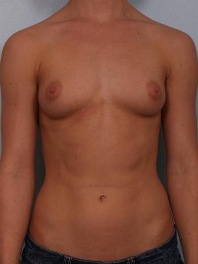 Breast Augmentation Gallery - Patient 1310846 - Image 1