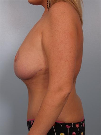 Mommy Makeover Gallery - Patient 1310839 - Image 6