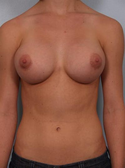 Breast Augmentation Gallery - Patient 1310846 - Image 2