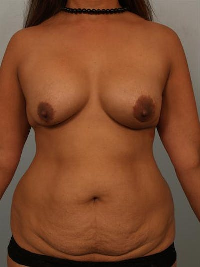 Breast Lift Gallery - Patient 1310844 - Image 1