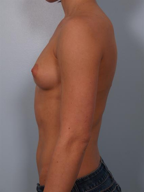 Breast Augmentation Gallery - Patient 1310846 - Image 3
