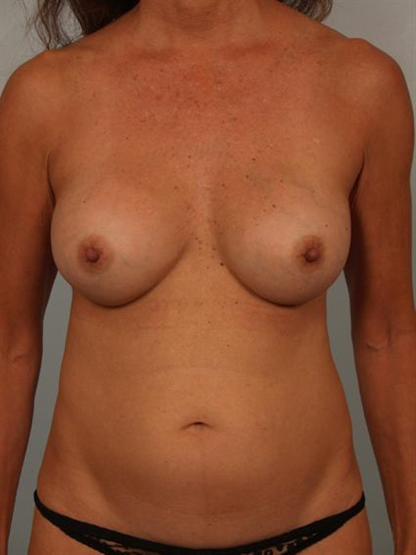 Mommy Makeover Gallery - Patient 1310847 - Image 1