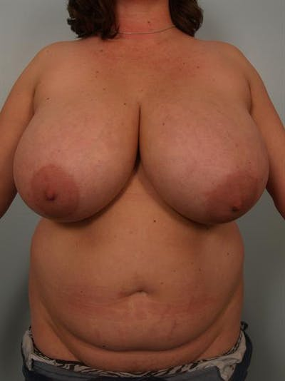 Breast Reduction Gallery - Patient 1310843 - Image 1