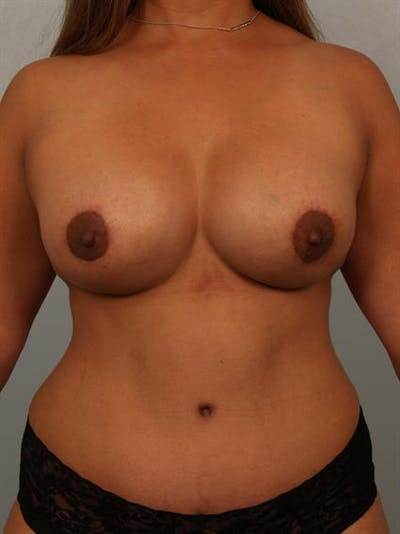 Breast Lift Gallery - Patient 1310844 - Image 2