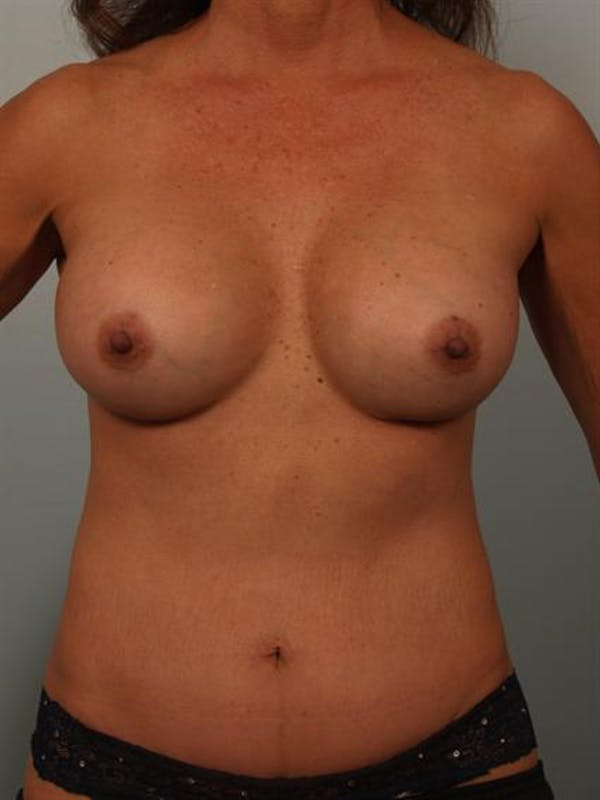 Mommy Makeover Gallery - Patient 1310847 - Image 2