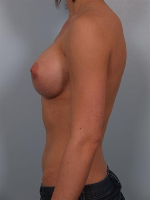 Breast Augmentation Gallery - Patient 1310846 - Image 4