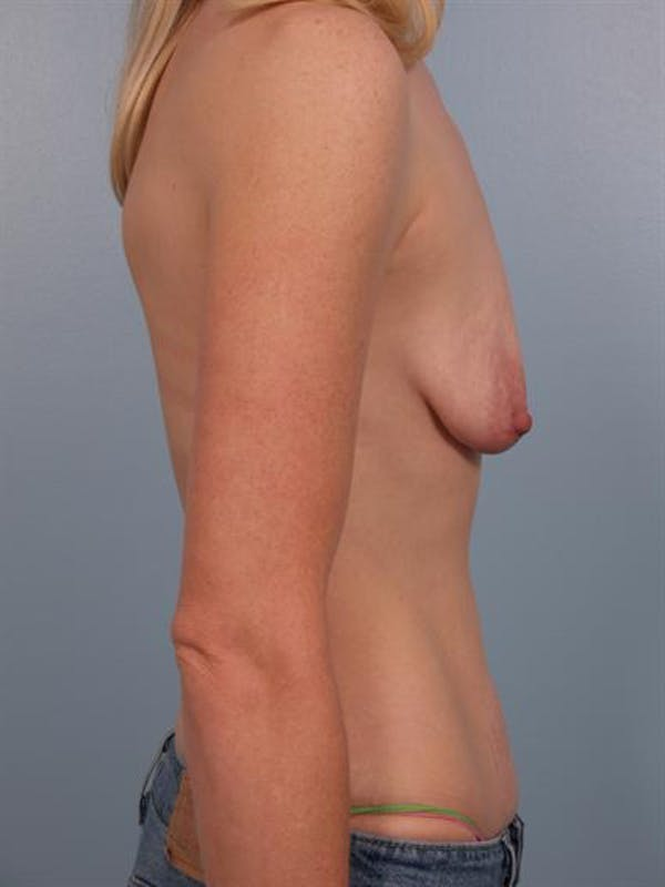 Complex Breast Revision Gallery - Patient 1310845 - Image 3