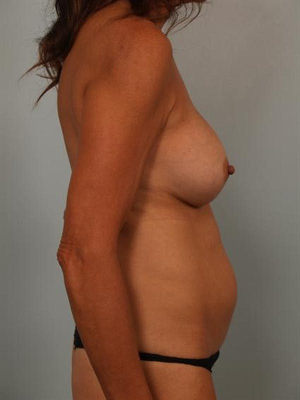 Mommy Makeover Gallery - Patient 1310847 - Image 3