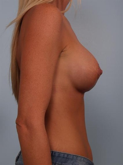 Complex Breast Revision Gallery - Patient 1310845 - Image 4