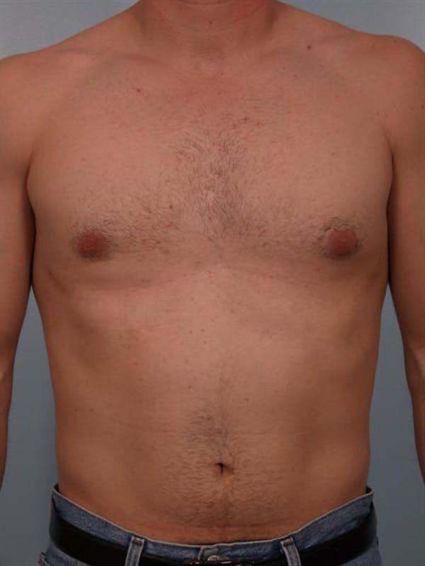 Male Liposuction Gallery - Patient 1310841 - Image 6