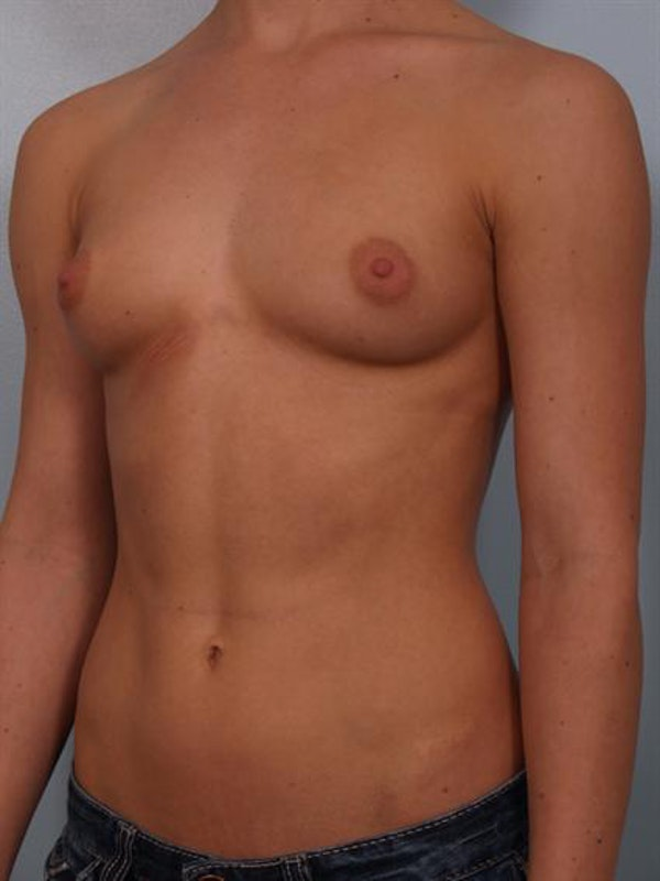 Breast Augmentation Gallery - Patient 1310846 - Image 5