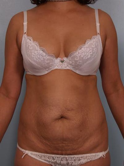 Tummy Tuck Gallery - Patient 1310848 - Image 1