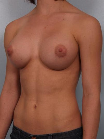 Breast Augmentation Gallery - Patient 1310846 - Image 6