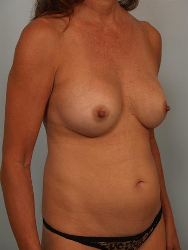 Mommy Makeover Gallery - Patient 1310847 - Image 5