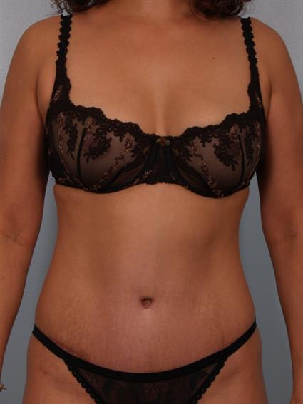 Tummy Tuck Gallery - Patient 1310848 - Image 2