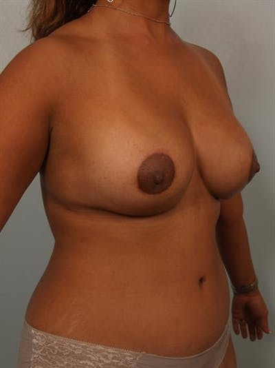 Breast Lift Gallery - Patient 1310844 - Image 6