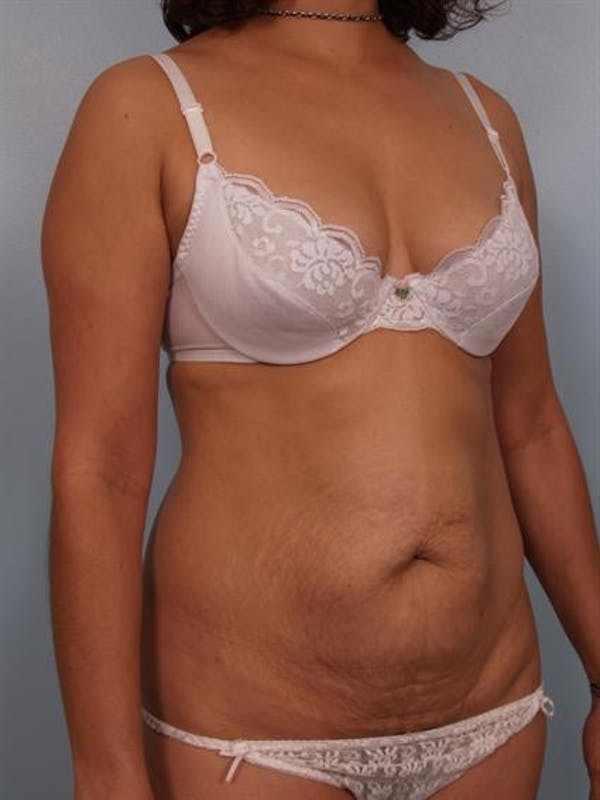 Tummy Tuck Gallery - Patient 1310848 - Image 3
