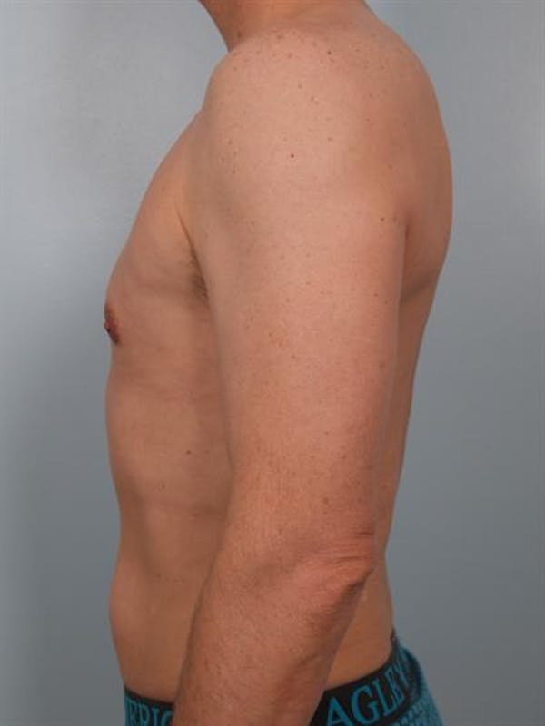 Male Liposuction Gallery - Patient 1310849 - Image 2