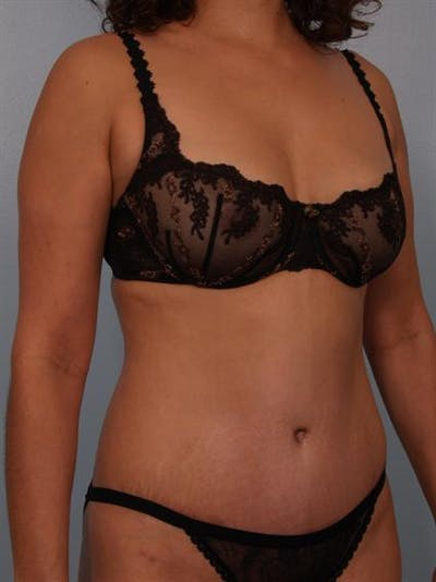 Tummy Tuck Gallery - Patient 1310848 - Image 4