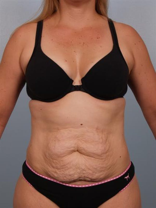 Power Assisted Liposuction Gallery - Patient 1310850 - Image 3