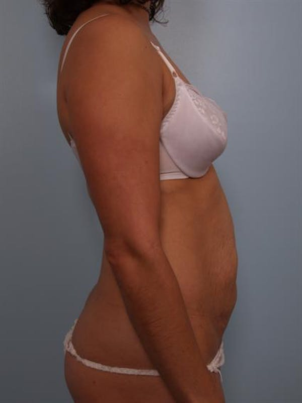 Tummy Tuck Gallery - Patient 1310848 - Image 5