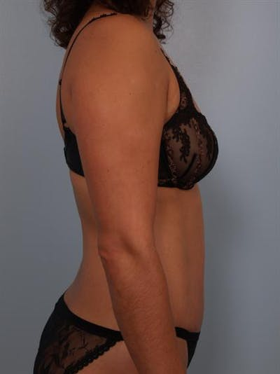 Tummy Tuck Gallery - Patient 1310848 - Image 6