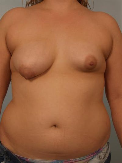 Breast Augmentation Gallery - Patient 1310854 - Image 1