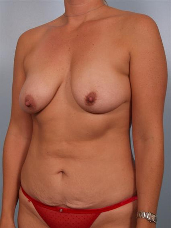 Mommy Makeover Gallery - Patient 1310851 - Image 3