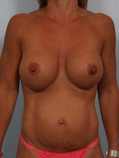 Breast Lift Gallery - Patient 1310853 - Image 2