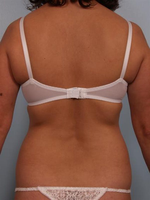 Tummy Tuck Gallery - Patient 1310848 - Image 7
