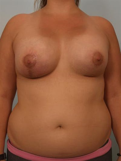 Breast Augmentation Gallery - Patient 1310854 - Image 2