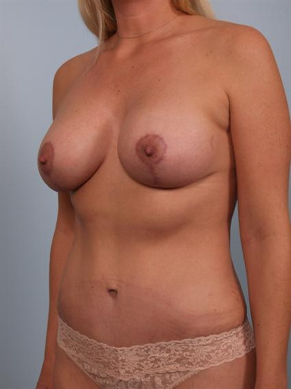 Mommy Makeover Gallery - Patient 1310851 - Image 4