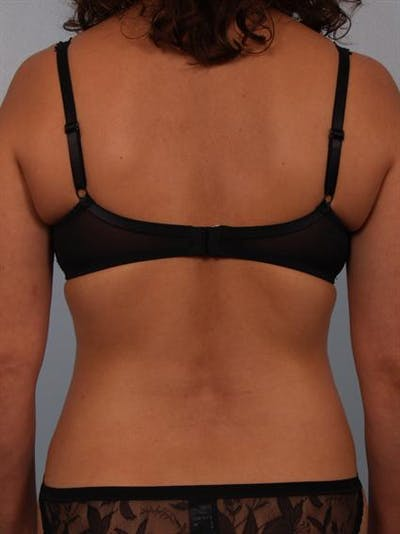 Tummy Tuck Gallery - Patient 1310848 - Image 8