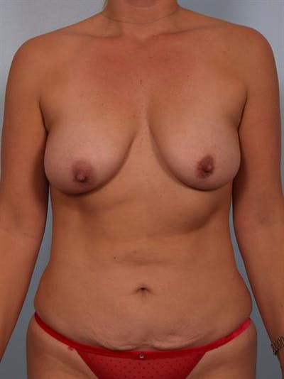 Mommy Makeover Gallery - Patient 1310851 - Image 1