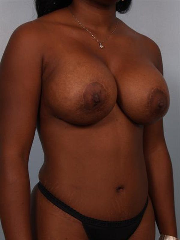 Complex Breast Revision Gallery - Patient 1310852 - Image 5