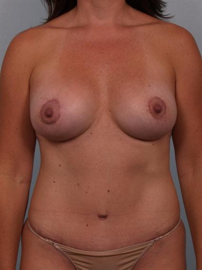 Tummy Tuck Gallery - Patient 1310855 - Image 2