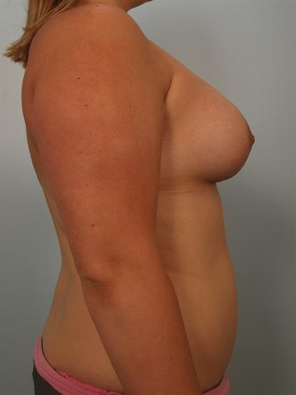 Breast Augmentation Gallery - Patient 1310854 - Image 6
