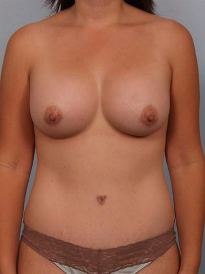 Mommy Makeover Gallery - Patient 1310860 - Image 2