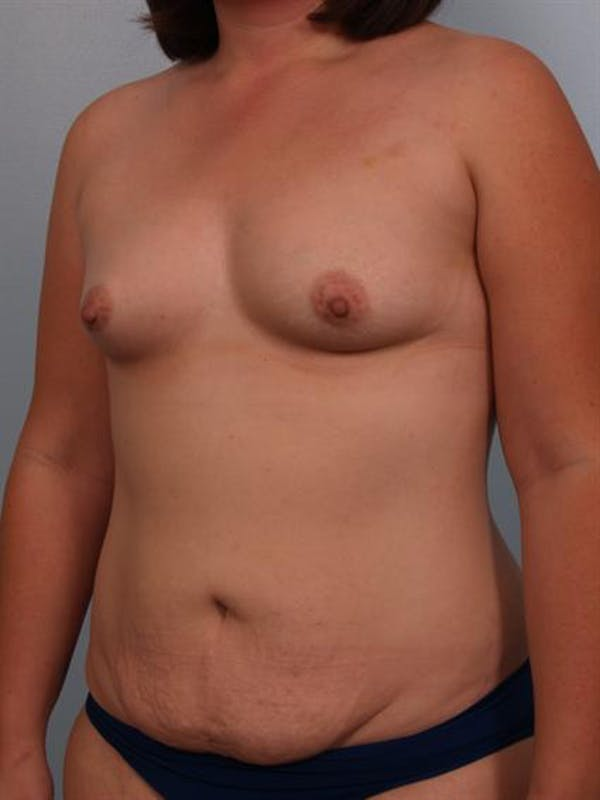 Mommy Makeover Gallery - Patient 1310860 - Image 3