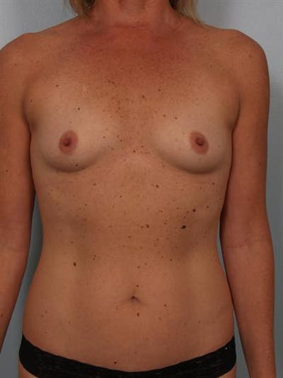 Breast Augmentation Gallery - Patient 1310863 - Image 1