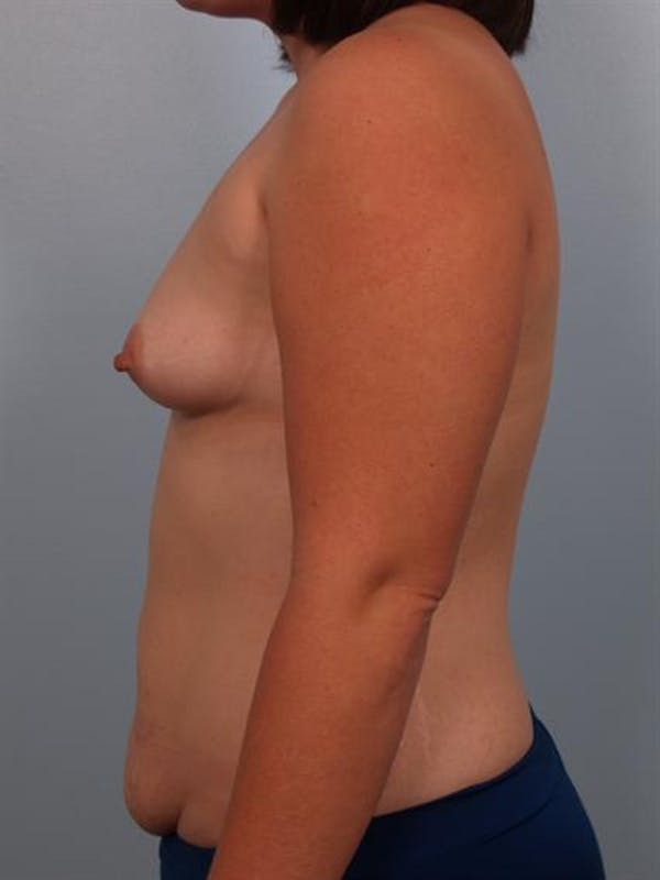Mommy Makeover Gallery - Patient 1310860 - Image 5