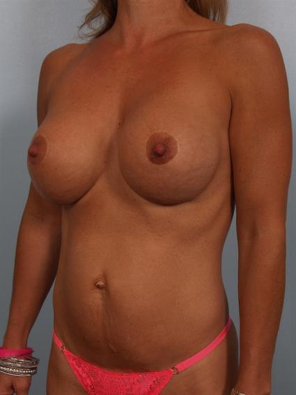 Complex Breast Revision Gallery - Patient 1310858 - Image 4