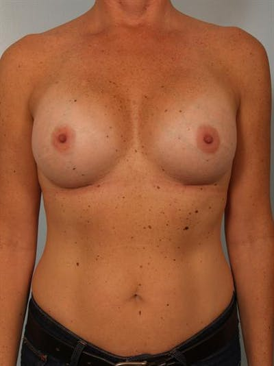 Breast Augmentation Gallery - Patient 1310863 - Image 2