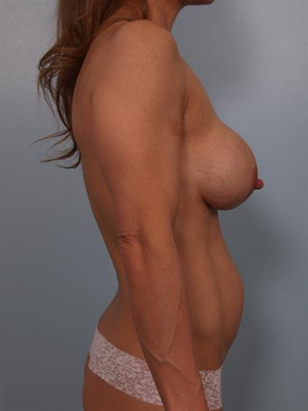 Complex Breast Revision Gallery - Patient 1310858 - Image 5