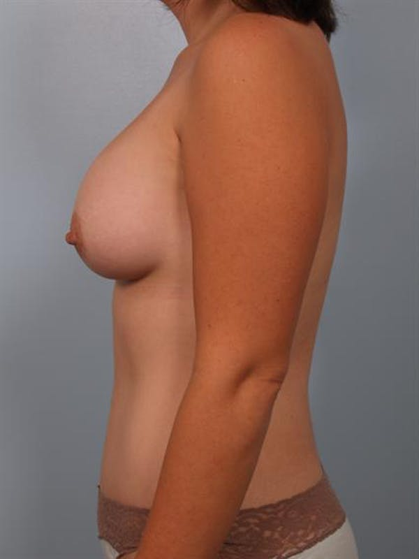 Mommy Makeover Gallery - Patient 1310860 - Image 6