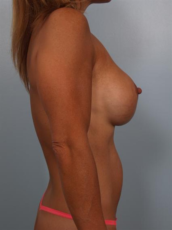 Complex Breast Revision Gallery - Patient 1310858 - Image 6