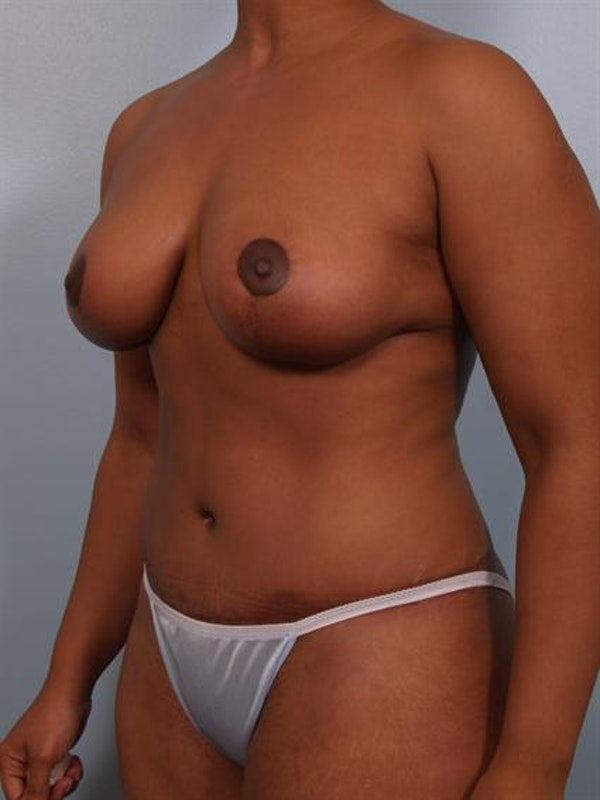 Tummy Tuck Gallery - Patient 1310861 - Image 4
